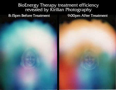 900PM before after treatment